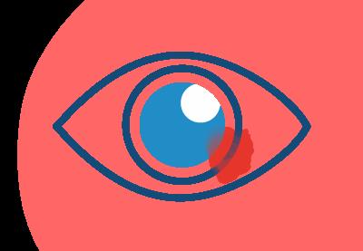 ד״ר שמואל גרפי, שמואל גרפי, מנתח עיניים, שמואל גרפי ניתוח עיניים, שמואל גרפי קטרקט, רופא עיניים בחיפה, רופא עיניים בקריות, דוקטור שמואל גרפי